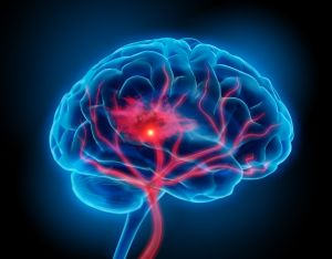 Inflamación del cerebro